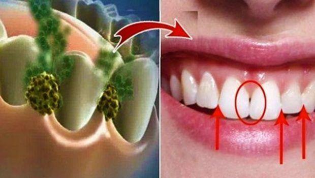 L'alito cattivo può essere causato da molti fattori, che vanno da una scarsa igiene alla presenza di determinati batteri nella bocca. I collutori commerciali spesso contengono moltissimi prodotti c…
