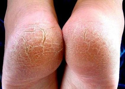 Aspirin Paste Against Cracked Heels