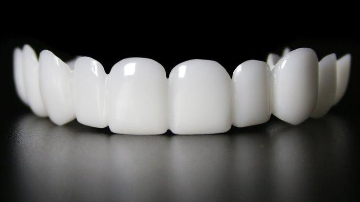 Best snap on smile teeth veneers top bottom ezaky