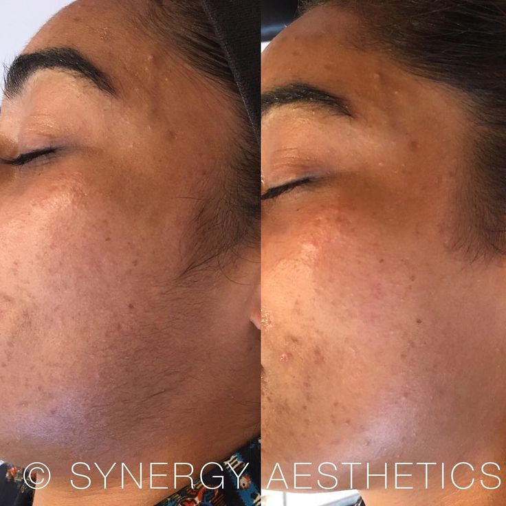 Dermaplane Infusion Treatment - Complete Skin Refining �� ・・・ Before & After Results ・・・ #SynergyAesthetics #Cosmetic #Treatments #LipAugmentation #DermalFillers #AntiwrinkleTreatment #LEDFaceMask #SkinClinic http://ameritrustshield.com/ipost/1544484097580312319/?code=BVvHBqNg6b_