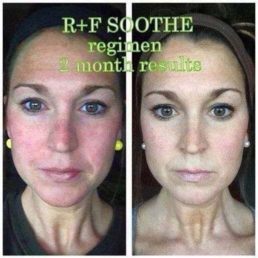 Rodan  Fields SOOTHE your irritated skin! I love before and after photos! by staceylhaynes