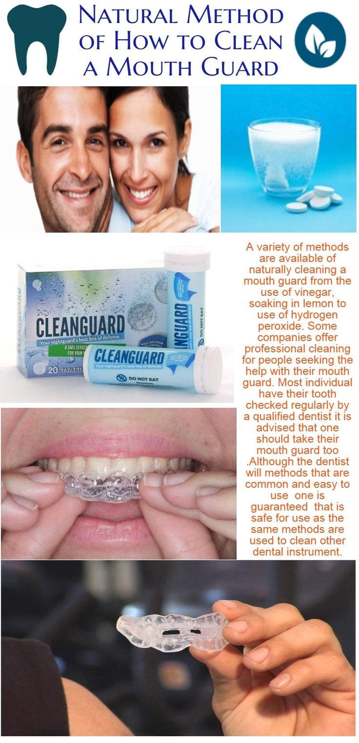 A variety of methods are available of naturally cleaning a mouth guard from the use of vinegar, soaking in lemon to use of hydrogen peroxide. Some companies offer professional cleaning for people seeking the help with their mouth guard.  https://cleanguard24.wordpress.com/2015/01/20/natural-method-of-how-to-clean-a-mouth-guard/