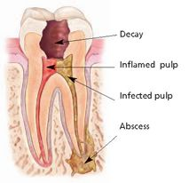 Treatment for Root Canals- Come see us to help you! http://www.bullvalleydentistry.com/