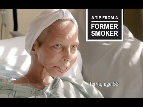 When Terrie was a child, doctors first linked smoking with cancer. As a teen, Terrie started smoking, like so many other people around her. As she grew older, smoking was linked to more and more diseases. At age 40, Terrie got cancer from smoking. In this TV commercial from CDC's Tips From Former Smokers campaign, photos of Terrie's life put a human face on the millions of Americans killed by smoking.