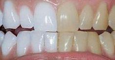 Finns det något mer iögonfallande än ett vackert leende? Om du inte är nöjd med det nuvarande utseendet på ditt leende, men du inte vill använda kemiska medel för att få dina tänder vitare, måste du se den här videon. Videon kommer att gå igenom hur du gör din egen tandkräm med hjälp av helt naturliga …
