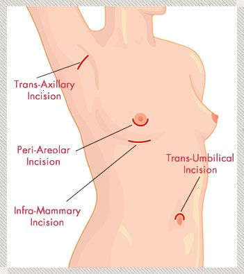 Incisions for Breast Augmentation