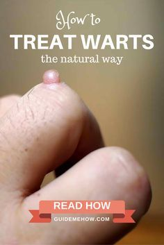 If you cannot afford to see a dermatologist, there are many ways to treat warts in a natural way. Read how: http://www.guidemehow.com/treat-warts-natural-way/