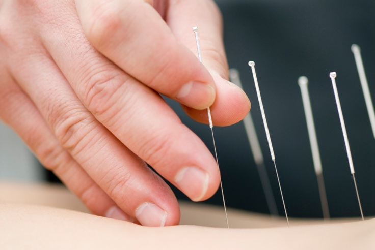 Acupuncture closer to being widely accepted - Boston.com