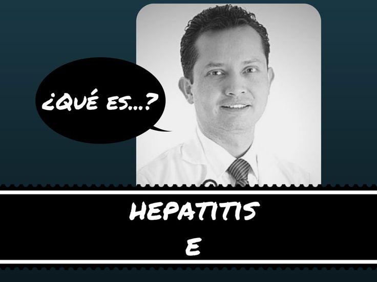 La hepatitis E es una infección viral que se transmite por mala higiene en la preparación de los alimentos. Es muy parecida a la hepatitis A, y no siempre se investiga en los cuadros de hepatitis aguda.
