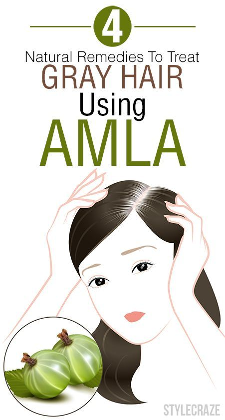 You love your lustrous and dark tresses but a streak of white perturbs you? Then check out these effective home remedies using amla for grey hair. #DryHair #Hair