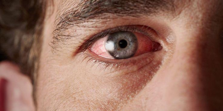 Синдром красных глаз: профилактика и лечение