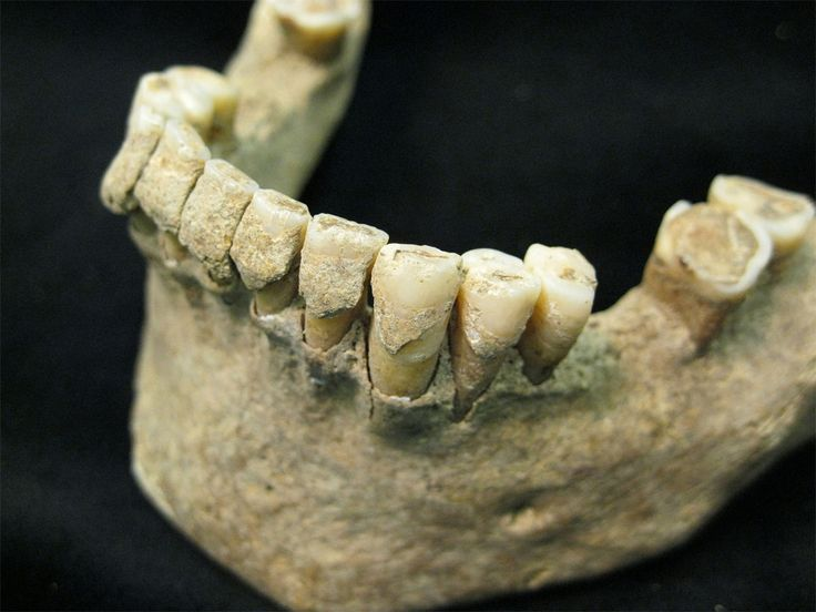 Your tooth plaque can reveal diet, diseases hundreds of years after death