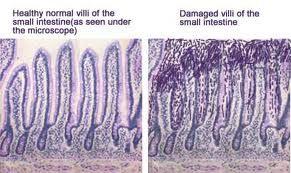 Villi of a Celiac--- (WHY go gluten free): Healthy Villi, Gluten Gluten, Thyroid, Gluten Free, Celiac Disea Intestin, Celiac Disease