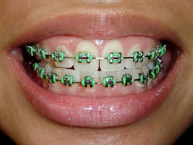 Safest way to not get pinched on St. Patrick's Day is to get green elastics on your braces :D #JorgensenOrtho