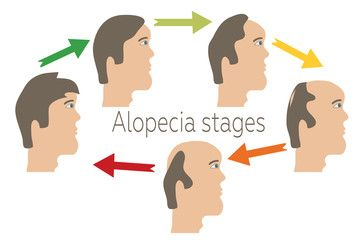 Alopecia stages set. Front view of a man losing hair. Male baldness. Male hair loss pattern.  Hair care concept. Vector illustration.