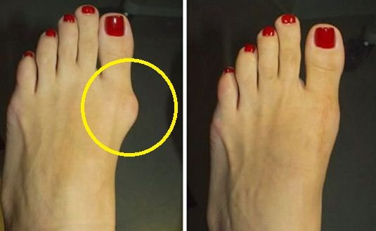 Bunion is a small bump that develops on the joint located at the base of your big toes. Wearing tight or narrow shoes is the most common cause of bunion, while other causes are attributed to structural defect which is inherited and medical condition. Fortunately, You don't need a surgery to get rid of bunion…