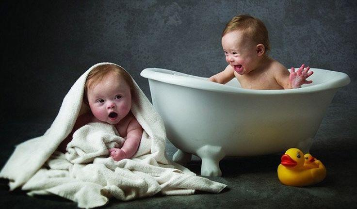 Atteints de trisomie 21, ces bébés sont tout simplement magnifiques dans ce calendrier caritatif...