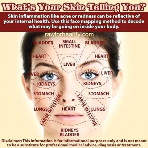 Chinese medicine Face Mapping: The skin is the biggest organ in or on our bodies. If something is affecting the skin, it might mean something internal is going on. Afflictions to look for include, pimples, rashes, or change of skin color/tone.   ✔️Forehead – Bladder and/or Small Intestine: Poor food choices, stress, excessive alcohol consumption, and reduced sleep may cause breakouts on the forehead. One should focus on...CLICK FOR MORE