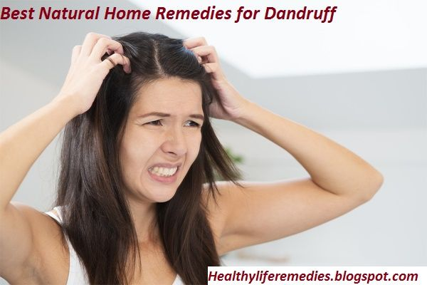 home remedies for dandruff and itchy scalp home remedies for dandruff hair home remedies for dandruff and oily itchy scalp home remedies for dandruff for colored hair home remedies for dandruff and hairfall home remedies for dandruff on dogs home remedies for dandruff baking soda home remedies for dandruff on color treated hair home remedies for dandruff listerine home remedies for dandruff fast home remedies for dandruff home remedies for dandruff and dry scalp home remedies for dandruff…