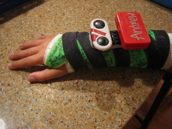 decorating arm cast ideas - Google Search