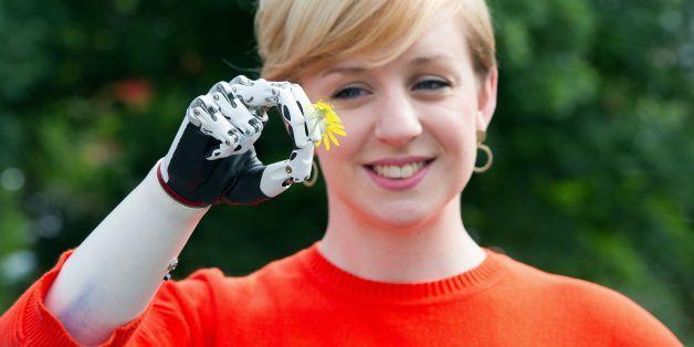 「自転車に乗れた」 最新ロボット義手を喜ぶ女性【動画】
