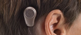 What is a bone anchored hearing system? Oticon Repinned by  SOS Inc. Resources.  Follow all our boards at http://pinterest.com/sostherapy  for therapy resources.