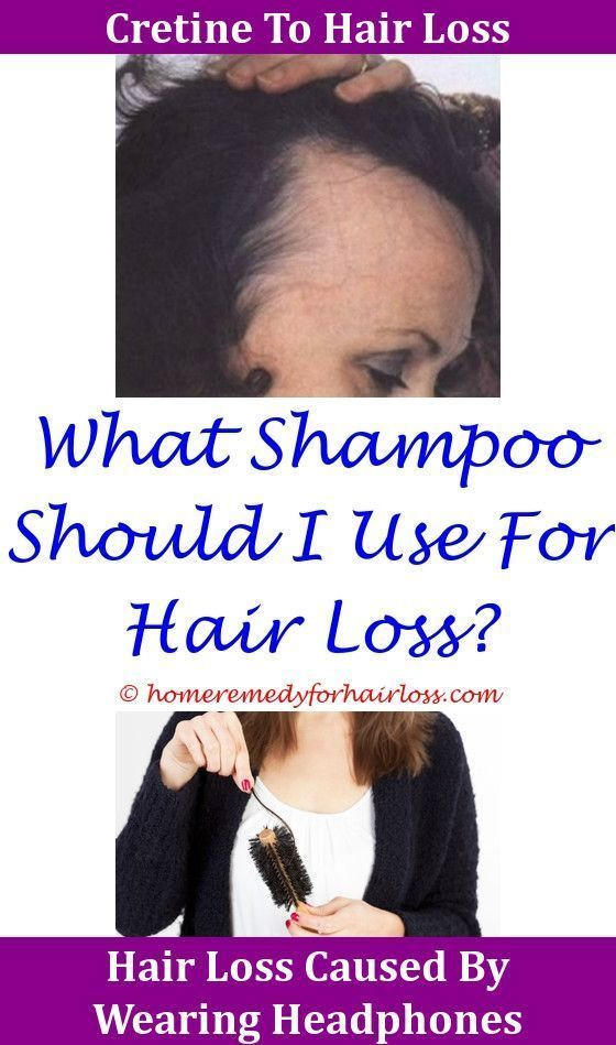 Hair Loss Cat Hair Loss Front Legs Cytomel And Hair Loss