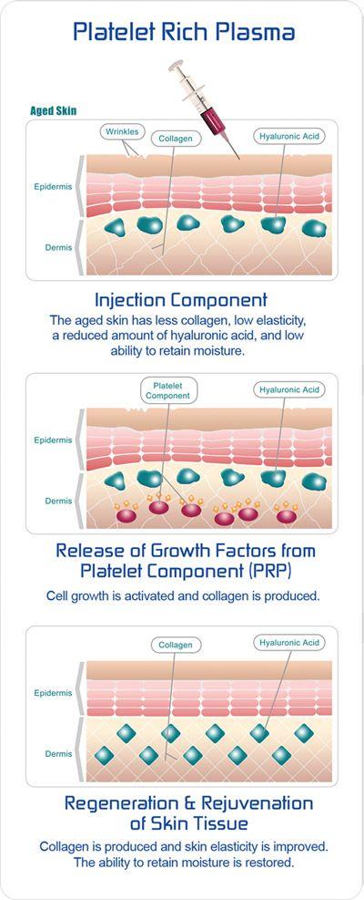How platelet rich plasma works