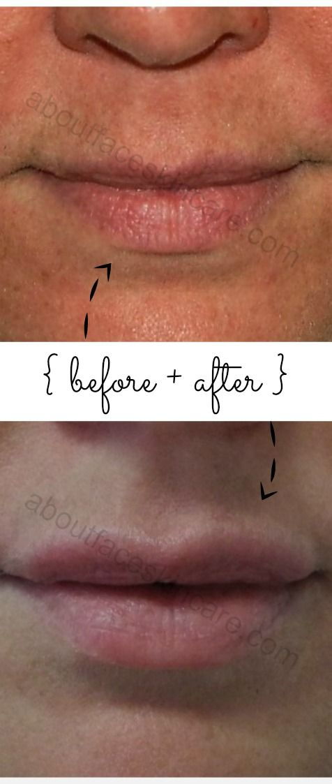 Before and After: Fraxel laser resurfacing AND lip injections. #fraxel #fraxelphilly #lips #lipinjections #skincare #restylane #juvederm #foreveryoung #phillyskincare