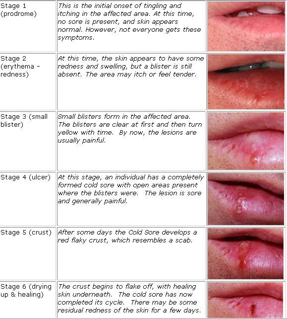 Winter is almost here which means that cold sore virus is