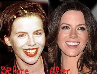 Kate Beckinsale Plastic or Cosmmetic surgery? I don't like so or if so it was very minor.