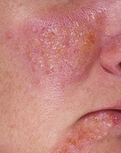 facial redness caused by autoimmune dysfunction picture
