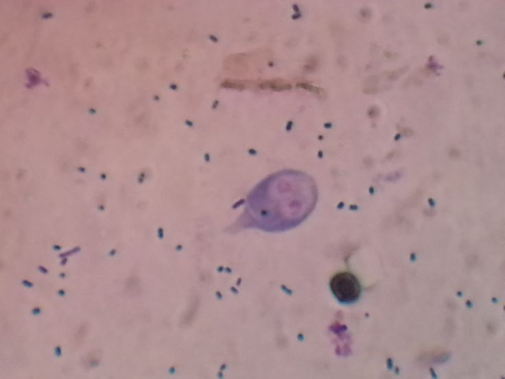 Trophozoite of Giardia lamblia on trichome stain
