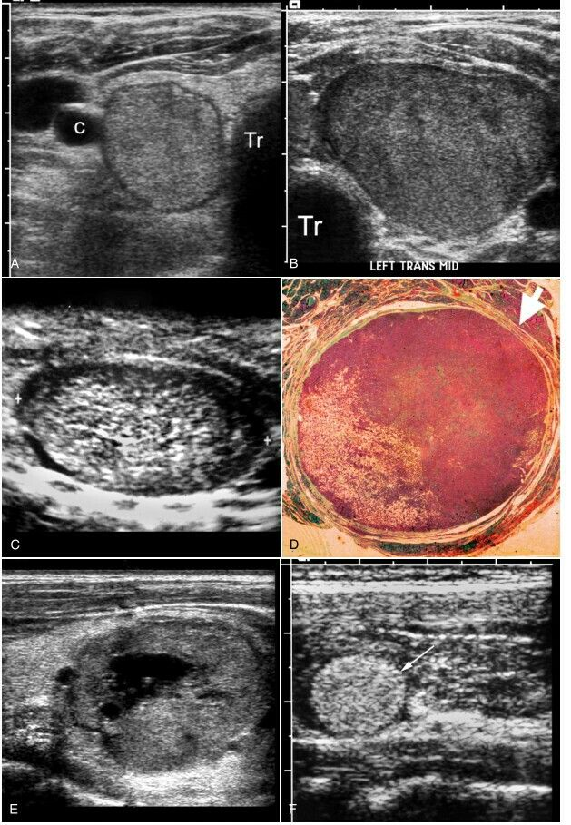 Benign Follicular Adenoma Spectrum Of Appearances Transverse Images Of A Right Lobe And B Left Lobe Of Thyroid