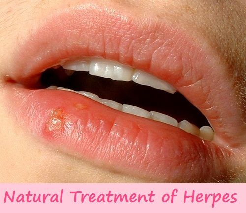Herpes Treatment at Home