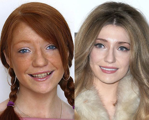 24 Celebrity Pics Before and After Dental Surgery!