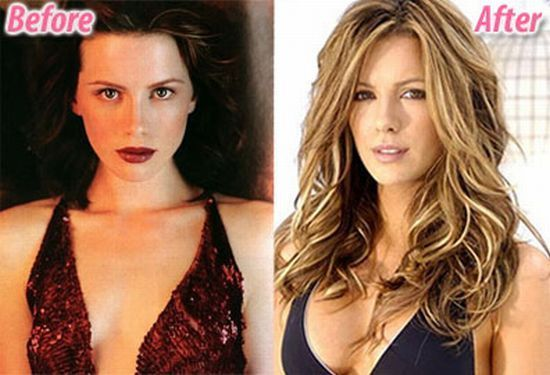 Kate Beckinsale - Denies Boob Job, Any Plastic Surgery