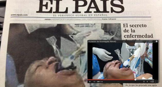 La foto falsa de Chávez convaleciente