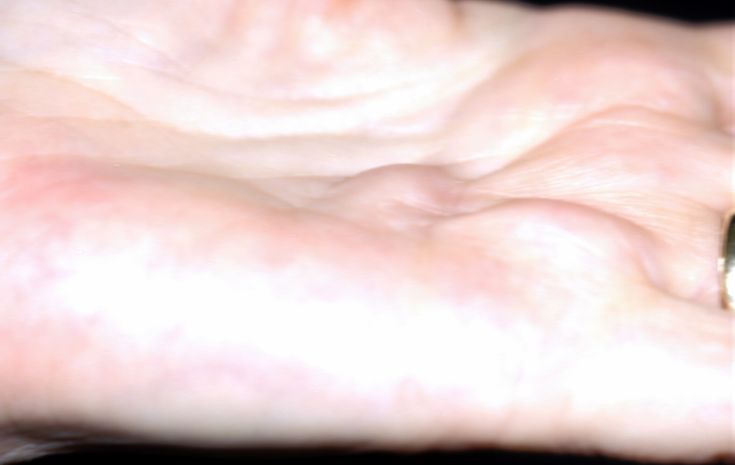 2013 I developed this disease. YAAAY!!!    Dupuytren's contracture is a fibroproliferative condition that primarily affects the palmar and digital fascia and can cause contractures of the metacarpal phalangeal and interphalangeal joints of the hand.