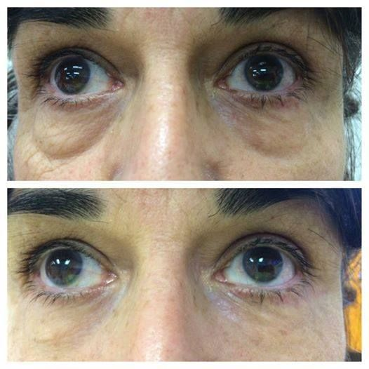 #minutes #yearsyounger  Instantly Ageless