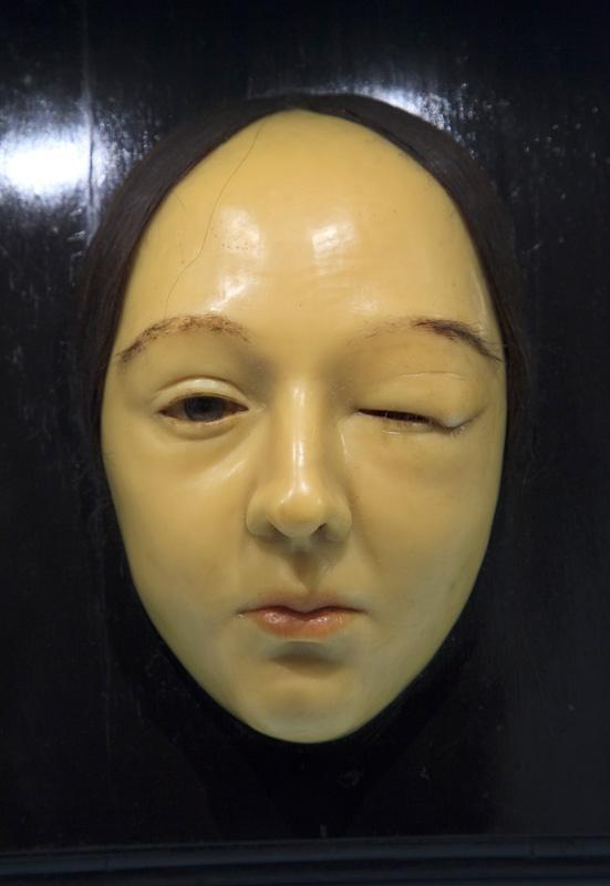 Morbid Anatomy: Museo di Anatomia Patologica dell'Universitá degli Studi di Firenze : Italy Trip