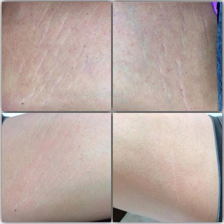 how to get rid of stretch marks from working out
