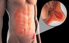 Hérnia Inguinal – O que é, Sintomas e Tratamentos