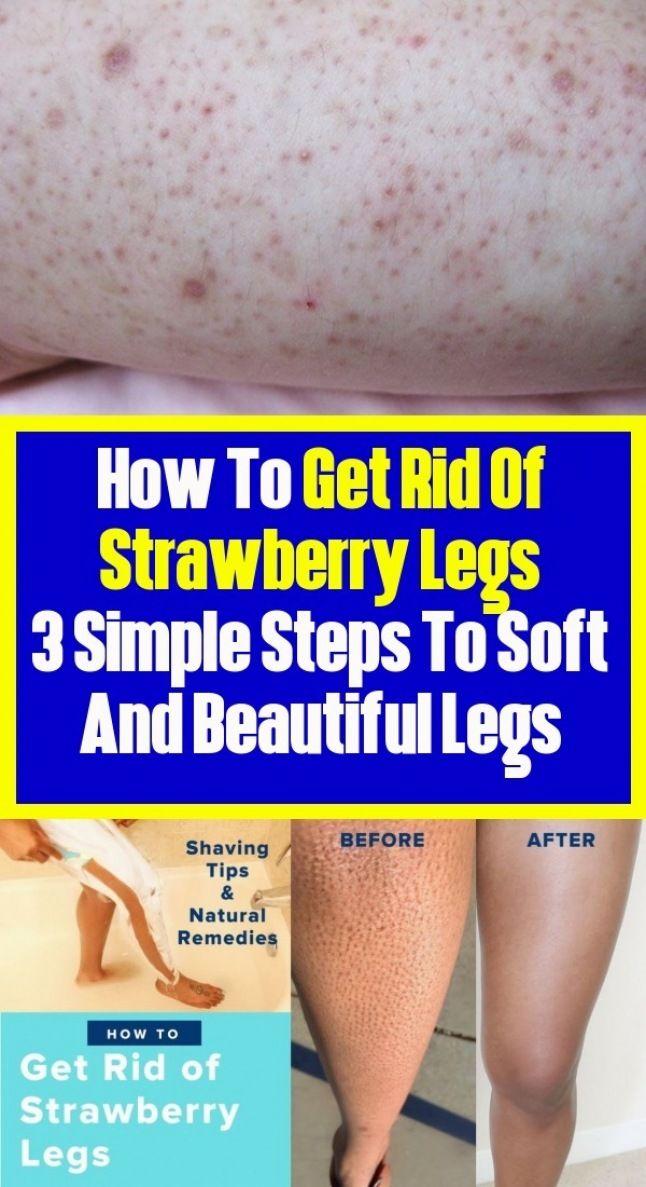 175fb1418aba27695f8166753c62397f - How To Get Rid Of Blue Marks On Legs