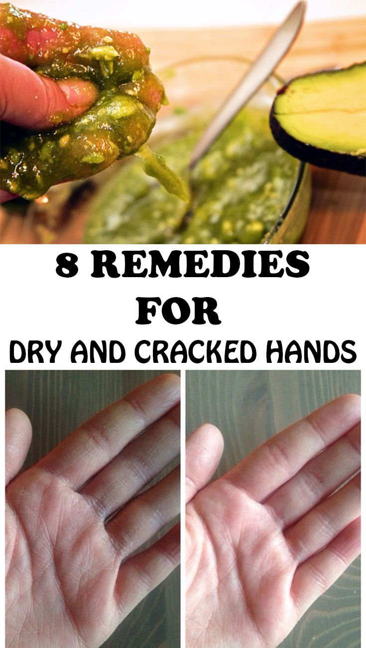 It is said that the hands of a person show her age more than any other body part. Here are 8 tips that help you get rid of cracked and dry hands!