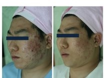 제14차 대한피부미용학회 에서 P1P앰플의 피부치료효과 발표