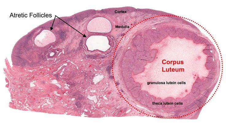 Ovary_corpus_luteum.jpg (800×455)