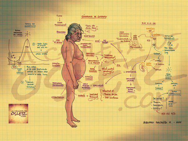 Síndrome de #Cushing http://wp.me/p748eV-hB vía @chuletadeosler #lupus #corticoides