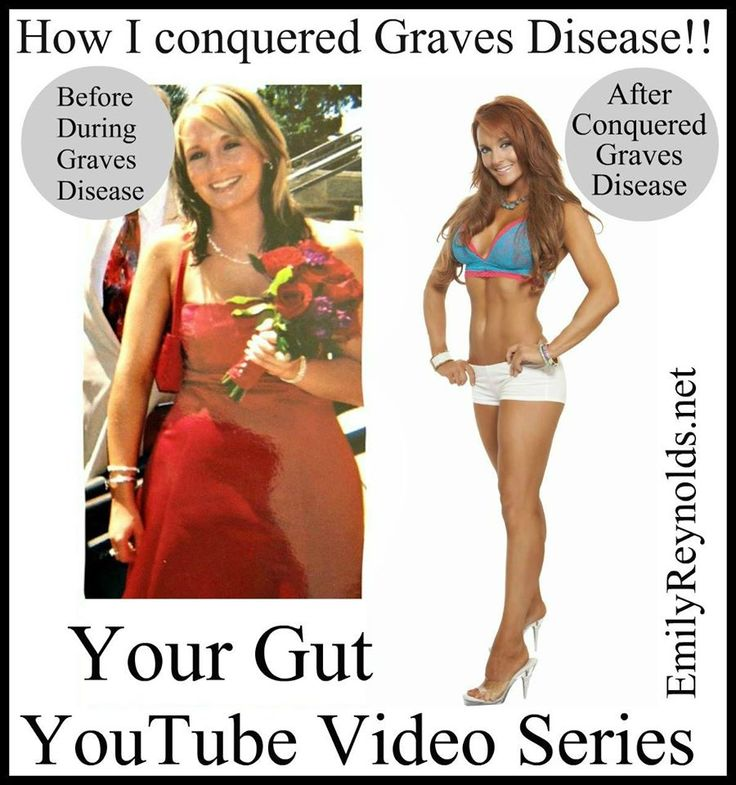 Do you listen to your gut? What is your gut trying to tell you about your health?? How I Conquered Graves Disease.Video 5:Your Gut. With Emily Reynolds Fitness Nutrition Specialist WATCH @ https://www.youtube.com/watch?v=kUUD__FILuc