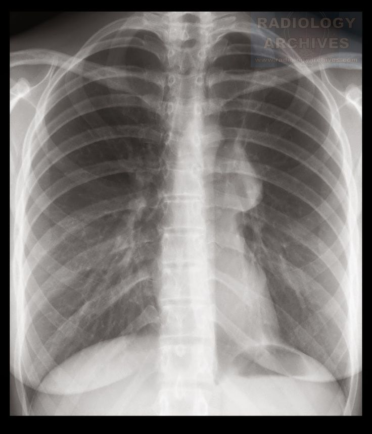Ενδοβρογχικό Καρκινοειδές > Bronchial Carcinoid Tumor